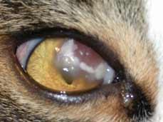 Eosinophilic Keratitis Conjunctivitis