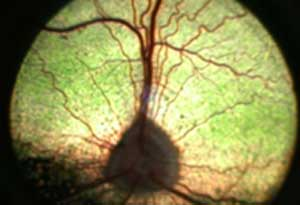 normal canine retina